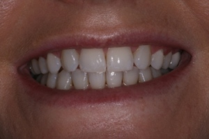 Case 4- Before treatment. Pointed canine teeth in position of missing lateral incisors.
