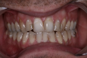 Case 2- Before treatment. Several discolured upper teeth and old discoloured fillings
