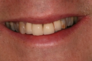 Case 1 -Before treatment.  Old metal bonded to porcelain crowns upper front four teeth.