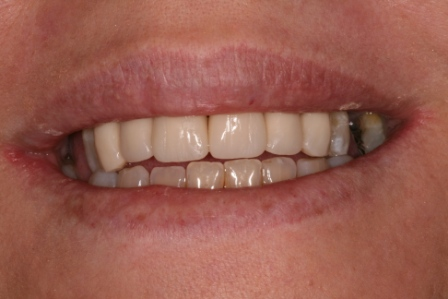 After treatment- 6 composite resin crowns on upper front teeth