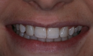Case 4- After treatment. Canine teeth built up with composite resin filling to create more natural smile.