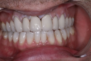Case 2- After Treatment.  Metal-porcelain crowns on upper six front teeth, full mouth whitening and replacement of discoloured white fillings
