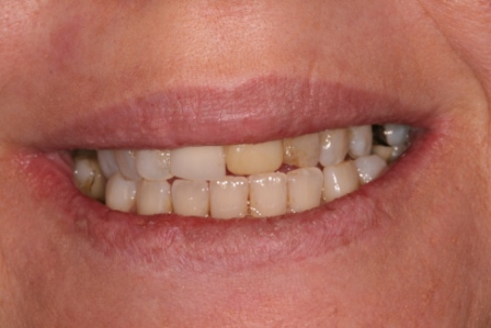 Before treatment- Patient unhappy with poor appearance of upper front teeth.