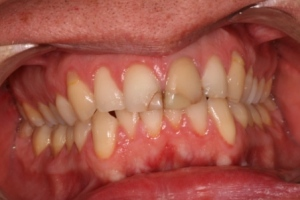 Before treatment. Very discoloured fillings on front teeth, discoloured front tooth.