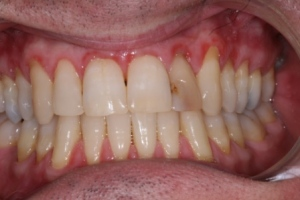 Before treatment. Discoloured front tooth