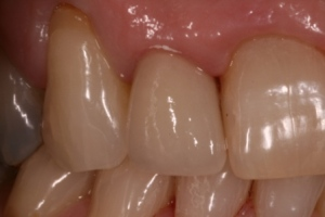 Example of superior esthetics of Procera (all ceramic) crown on middle tooth.