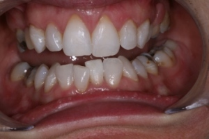 Case 3- After treatment. Inside and out bleaching on lower incisor followed by full mouth bleaching