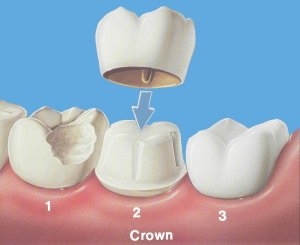 A crown is cemented on to a prepared tooth