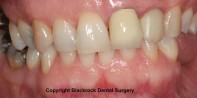 Case 16 -Before treatment. Old crown and veneer