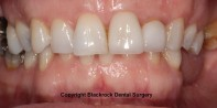 Case 16 -After full mouth whitening and new Emax crown and Emax veneer at upper left central and lateral incisors by Dr Tom Rodgers