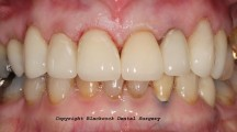 Case 18 - After 8 E-Max ceramic crowns on upper front teeth by Dr Tom Rodgers