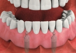 Lower full denture held tightly in place by implants