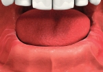 all lower teeth missing