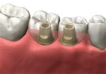 abutments and crowns placed over implants