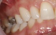 Case 23 Before - Large amalgam filling